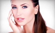 $129 for Photofacial with Microdermabrasion at North Cypress Family Practice & Laser Center ($550 Value)