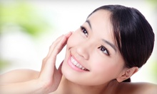 One or Two 60-Minute Facial-Infusion Peels at The Face Institute (Up to 59% Off)