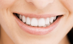 Teeth-Whitening Treatment