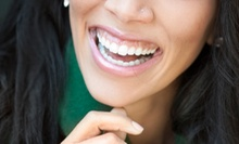Dental Exam with X-rays, Cleaning, and Optional Teeth-Whitening Kit at Affinity Dental of La Mesa (Up to 87% Off)