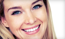 $149 for Five Laser Teeth-Whitening Treatments at Bare Smooth ($349 Value)
