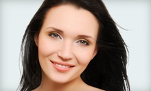 20 Units of Botox or 60 Units of Dysport at Reviv Med Spa (Half Off)
