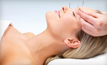 Acupuncture Packages from Dustin Siena, L.AC. (Up to 85% Off). Three Options Available.