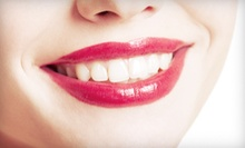 $39 for exam + xray + cleaning + customized take home bleaching trays ($394 value)