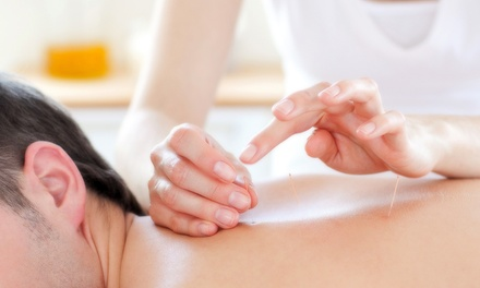 1 or 10 One-Hour Acupuncture Treatments at Whetton Chiropractic Center (Up to 57% Off)
