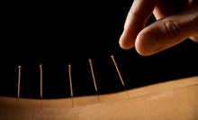One or Two Acupuncture Treatments with Consultation at AJ Acupuncture Clinic (76% Off)