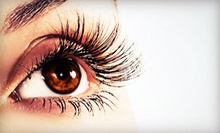 $1,499 for an Upper- or Lower-Eyelid Lift on Both Eyes at Byer Ophthalmic Associates ($4,000 Value)