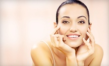 One, Two, or Three IPL FotoFacials and Microdermabrasion Treatments at Aura Laser Skin Care (Up to 89% Off)