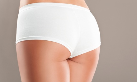 Two, Four, or Six Noninvasive Brazilian Butt Lifts and 3D Lipo at Natural Beauty Clinique (Up to 89% Off)