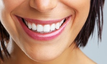 $69 for a One-Hour Teeth-Whitening Treatment at Smile Studio DFW ($350 Value)