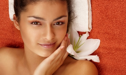 One, Three, or Five IPL Photofacials at LV Laser Services (Up to 76% Off)