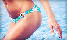 One, Two, or Three Brazilian Bikini Sugarings or Waxes at Sunrise Hair Studio & Sue's Skin Care Center (Up to 67% Off)