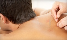 Exam, Consultation, and One or Two Acupuncture Sessions at All Pro Health Center (Up to 89% Off)