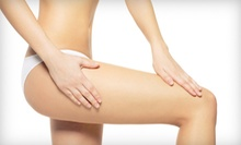 Two or Three LipoLaser Body-Shaping Treatments at The Lumix Aesthetics (Up to 84% Off)
