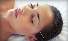 One Consultation and Acupuncture Session or Three Acupuncture Sessions at Boulder Sports Acupuncture (Up to 63% Off)