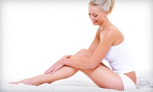 Laser Hair Removal at Elegance Medi Spa (Up to 93% Off). Four Options Available.
