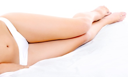 $149.99 for One Spider-Vein Treatment at The Vein Clinic of Washington in Chevy Chase ($350 Value)