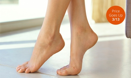 One, Two, or Three Sclerotherapy Spider-Vein Treatments at LaVida MedSpa (Up to 75% Off)