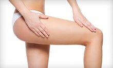 Two or Four Laser Spider-Vein Removal Treatments at Advanced Skin Care Center MedSpa (Up to 80% Off)