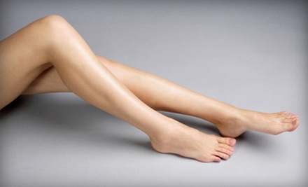 $99 for One Laser Spider-Vein-Removal Treatment at Denise Hurley Esthetics ($250 Value)