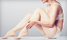 Laser Hair-Removal Treatments at Teach Me Beauty (Up to 85% Off). Four Options Available, Including Unlimited Hair Removal.