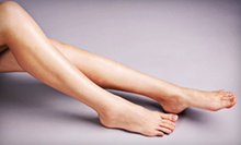 $259 for Laser Toenail-Fungus Treatment for Both Feet and Take-Home Medicine at Affordable Foot and Leg ($940 Value)