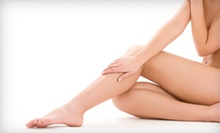 $99 for a Laser Vein Treatment at Still Waters Day & Medical Spa (Up to $300 Value)
