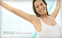 One or Two Smoothbeam Laser Acne-Reduction Treatments at Pulse Laser and Skincare Center (Up to 62% Off)