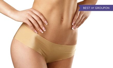 $125 for Four UltraSlim Treatments in One Session at UltraSlim Arizona ($500 Value)