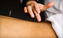 $83 for $150 Worth of Acupuncture Services from Dr. David P. Kearney