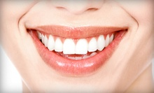 $159 for a Zoom! Teeth-Whitening Treatment and Cosmetic Consultation from Stewart Gordon, D.D.S. ($850 Value)
