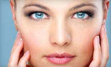 Four, Six, or Eight Microdermabrasion Treatments from Sherry Rayborn at Creme de la Creme (Up to 57% Off)