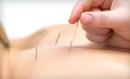 Initial Consultation and One, Two, or Three Acupuncture Sessions at The Natural Detox and Healing Center (Up to 80% Off)