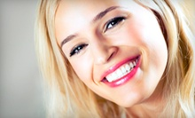 $89 for One In-Office Teeth-Whitening Treatment at Platinum White ($179 Value)