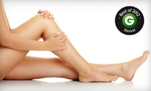Two or Five Laser Spider-Vein Treatments for One or Both Legs at Aspiring Laser Renewal (Up to 83% Off)