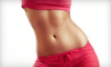 $699 for Six Zerona Laser Body-Slimming Treatments at Stein Plastic Surgery ($2,500 Value)