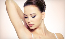 Laser Hair Removal at Juventa Med Spa (Up to 81% Off). Four Options Available.