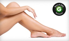 One or Three Sclerotherapy Sessions for the Legs at The Vein Center at Virginia Surgical Associates (Up to 56% Off)