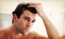 $99 for Three Months of Laser Hair-Restoration Treatments at Biomedic ($297 Value)