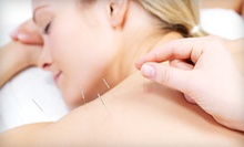 Acupuncture Packages at Center for Natural Healing (Up to 57% Off). Three Options Available.