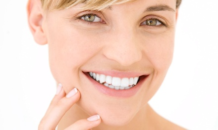 One Beaming White Teeth-Whitening Treatment at Body & Soul Medical and Holistic Spa (79% Off)