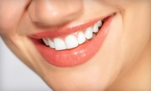 Dental Checkup with Exam, X-rays, Whitening and Optional In-Office Whitening at The Dental Office Encino (Up to 87% Off)