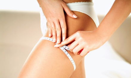 6, 9, or 12 Zerona Laser Treatments at Fountain of Youth Medical Spa (Up to 78% Off)