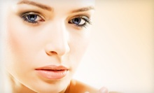 Four, Six, or Eight Microdermabrasion Treatments from Sherry Rayborn at ProFiles Hair and Nail Salon (Up to 57% Off)