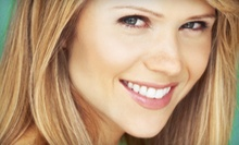 One or Two Facials from Joanne Duval at Sims Premier Fitness (Up to 68% Off)