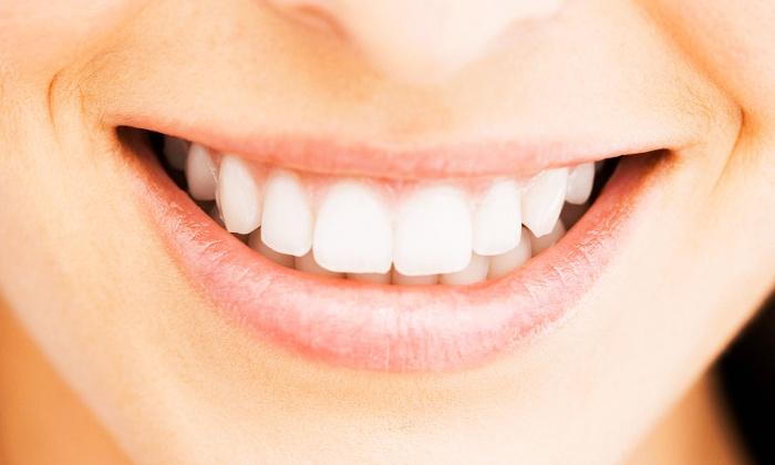 Smile Centre — Braga: 1, 2, 3, 4 ou 5 facetas dentárias camponeer com limpeza e 3 consultas desde 99€