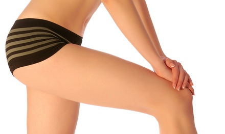 $595 for Six Zerona Laser Body-Sculpting Treatments at The Vine Medical Center ($1,500 Value)