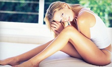Laser Vein Removal on One or Both Legs at Northshore Medical Center (Up to 83% Off)
