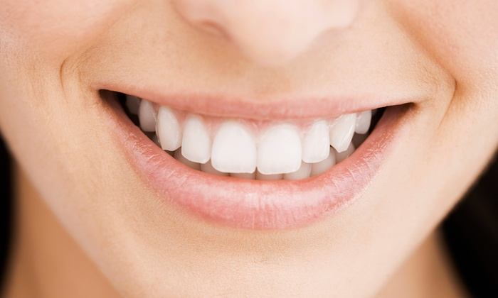 Glimmer Laser & Beauty Clinic - Johannesburg: Teeth Whitening from R399 at Glimmer Laser & Beauty Clinic (Up to 55% Off)