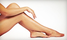 $99 for Varicose- or Spider-Vein Treatments at North Bridge Vein Care ($325 Value)